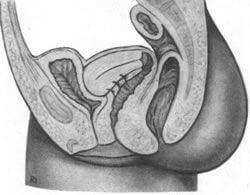 wąska pochwa