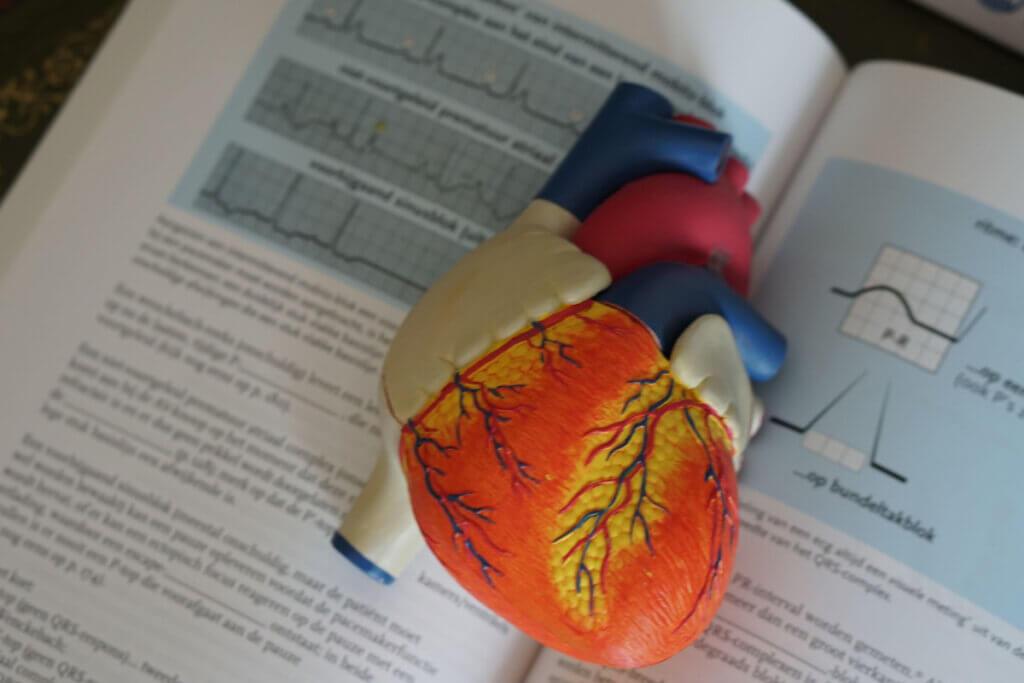 CardioFort Opinie, Forum, Składniki, Efekty Uboczne, Przeciwskazania, Cena, Apteka