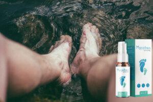 Mycofren Spray kuracja, efekty, wskazania do stosowania